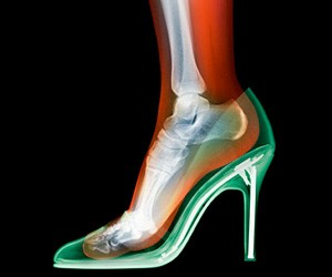 X-Ray Fashion Photography by Nick Veasey